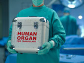 070813OrganTransplantmaster-1373296079007